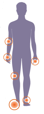 human body showing gout flare points