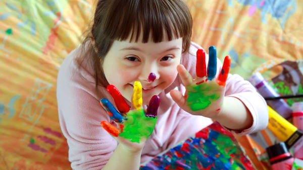 Twice as many children with Down syndrome have arthritis than previous estimates